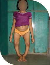 Chandani, a chirpy 12 year old girl with gross bowing of legs.
