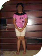 She underwent plate hemi epiphysiodesis before six months. In these six months the distance between her two ankles has reduced from 27 centimeters to 14 centimeters. After full correction of the deformity the plate would be removed to allow normal growth to take place.